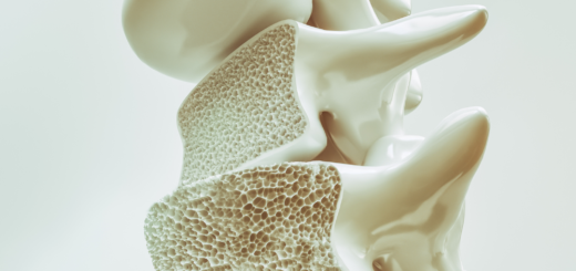 osteoporoza raport